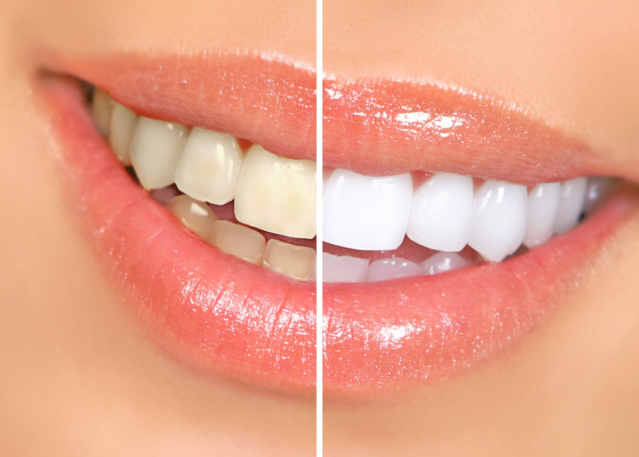 Image Credit: drperrone.com/blog/want-a-whiter-smile/