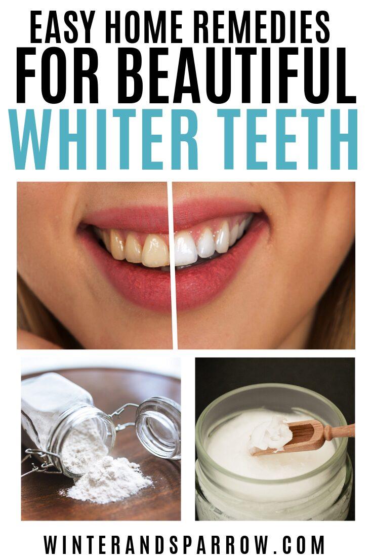Easy Home Remedies for Beautiful, Whiter Teeth | winterandsparrow.com