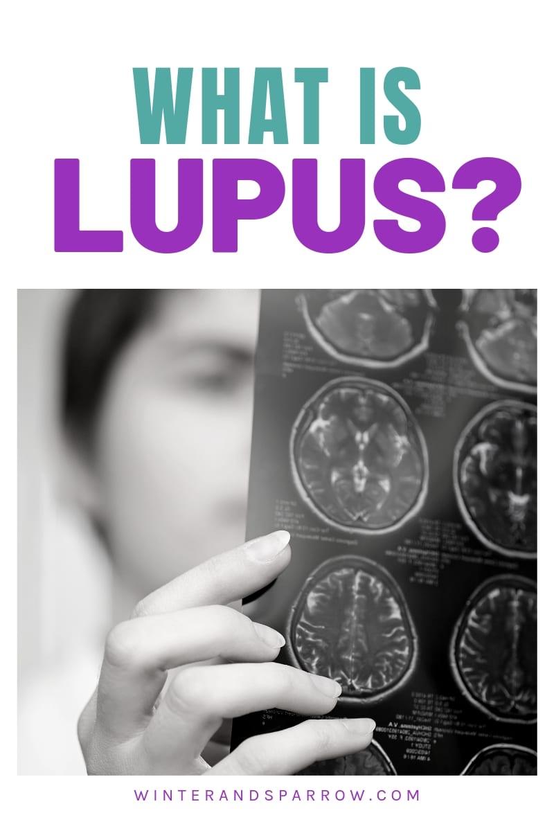 What Is Lupus? | winterandsparrow.com #whatislupus #lupus #sle #treatmentforlupus