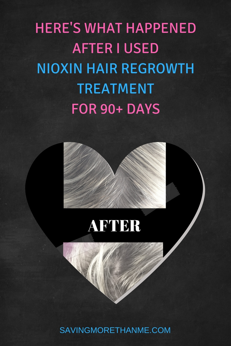 What Happened After I Used Nioxin Hair Regrowth Treatment For 90+ Days