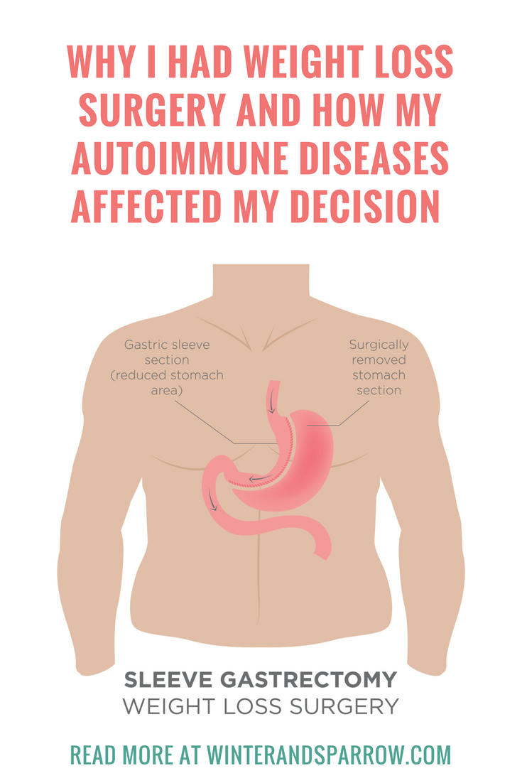 Why I Had Weight Loss Surgery How Autoimmune Diseases Affected My